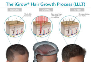 Igrow Laser Hair Growth System Usfda Approved Laser